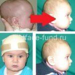 Лечение краниальными ортезами
