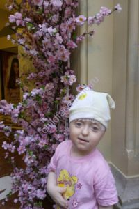 Пугачева Злата_после операции